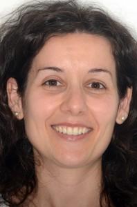 Dra. Mª Ángeles Carretero Peláez Endodoncia